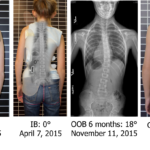 Scoliosis bracing in Dallas, TX and Fort Worth, TX, back brace 1, orthotics, spinal orthotics and pediatric orthotics from Baker O&P.