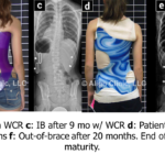 Back brace 4, orthotics and scoliosis bracing in Dallas, TX and Fort Worth, TX, spinal orthotics and pediatric orthotics, call Baker O&P today.